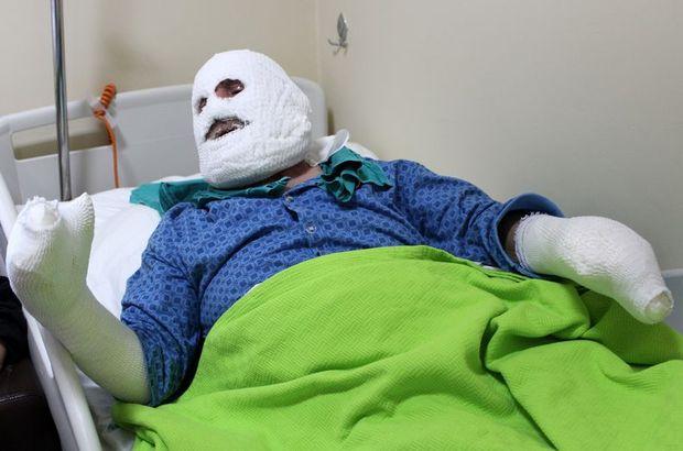 Gaz patlamasıyla bütün vücudu yanmıştı, yaşlı adam bir ay sonra eski sağlığına kavuştu!