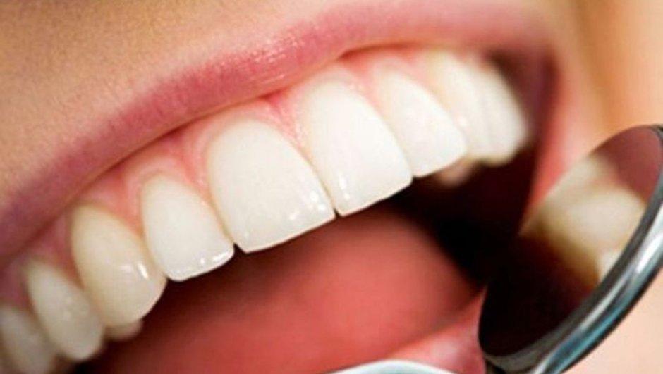 Uzmanlar uyardı! Diş beyazlatan market ürünleri kullanılmamalı!
