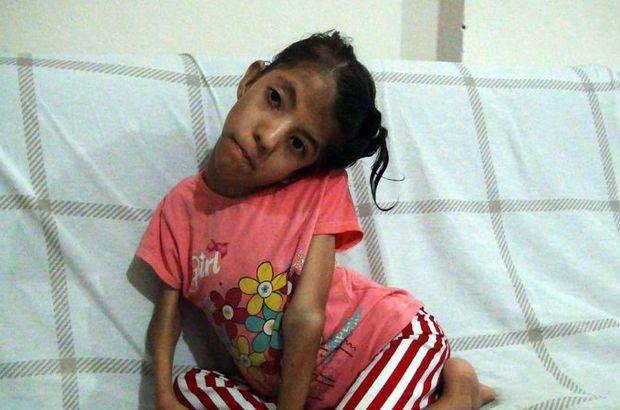 Osmaniye'de yaşayan Elif Nur Cantekin sağlığına kavuşmak için yardım bekliyor!