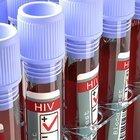 HIV'İN ÇÖZÜMÜ İNEKLERDE Mİ?