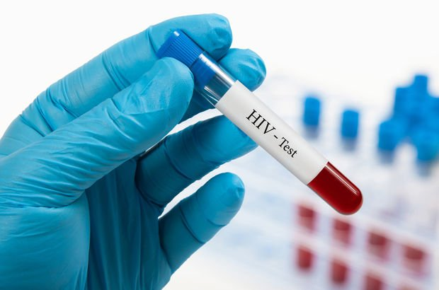 HIV listesine her yıl 2 bin kişi ekleniyor