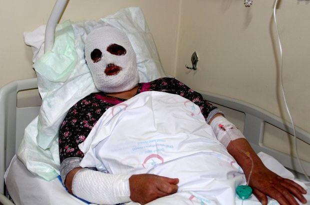 Ağrı'da lavabo açıcıya sıcak su döken kadının yüzü yandı