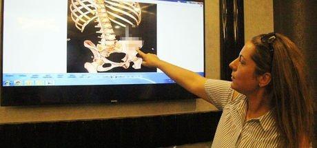 Gaziantep'te ameliyat olan Emel Bingöl, ameliyatta karnında unutan makasla 6 ay yaşadı