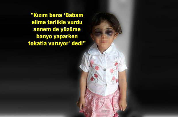 Karabük'te üvey anne dehşetini yaşayan 3 yaşındaki kızın öz annesi konuştu