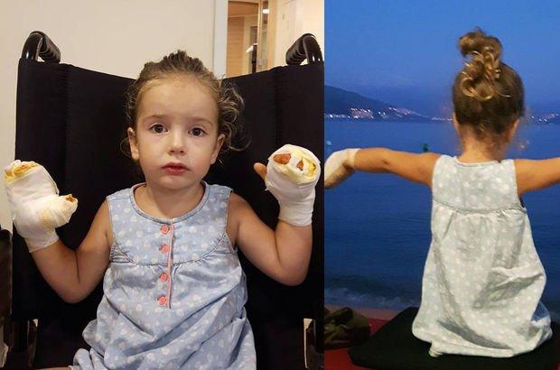 Bursa'da seyyar satıcıdan alınan balon patladı, 3 yaşındaki Mira'nın elleri yandı