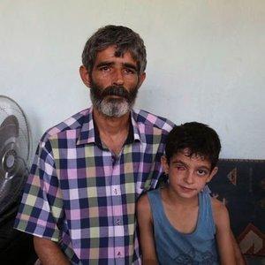 """""""PROTEZ GÖZ"""" İÇİN BABA OĞUL ÇÖP TOPLUYOR!"""