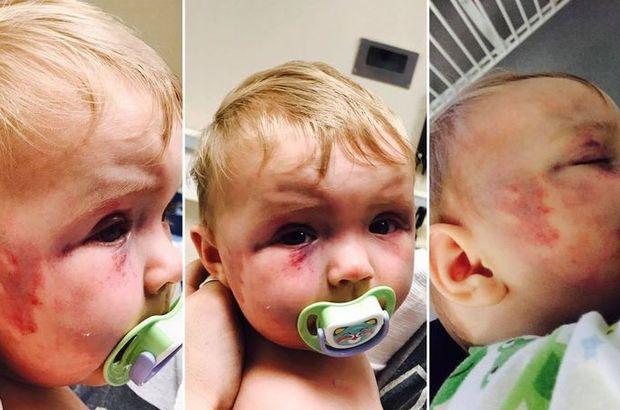 Sekiz aylık kızını öldüresiye döven anne ceza almadı!
