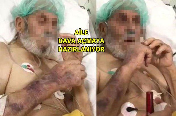 Yoğun bakım skandalındaki yaşlı adam hayatını kaybetmiş!
