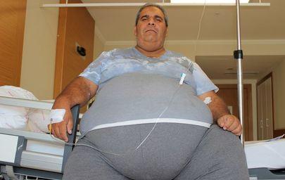 Efkan Bağış 250 kilo olunca Edirne'den Elazığ'a gidip tüp mide ameliyatı oldu