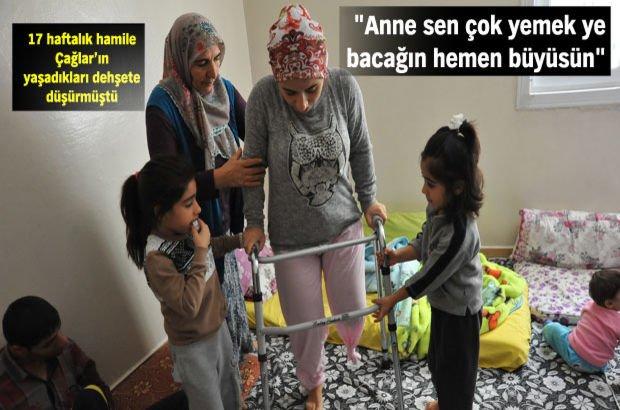 Gaziantep'te eşinin işkencesi sonucu sol bacağını kaybeden Çağlar Aşık taburcu oldu