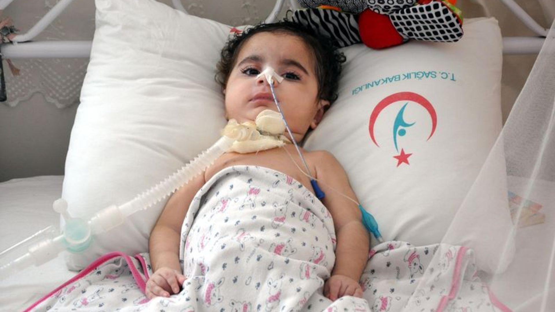 SMA hastalığı (Gevşek Bebek Sendromu) nedir, nasıl tedavi edilir