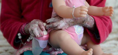 Almanya'da epidermolizis bülloza hastası bir çocuk gen tedavisiyle iyileştirildi