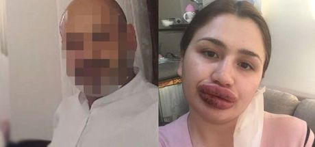Adana'da sahte botoksçuya 6 yıl hapis cezası