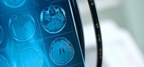 Baş ağrısını yıllarca sahne stresi sandılar, beyninde damar yumağı çıktı