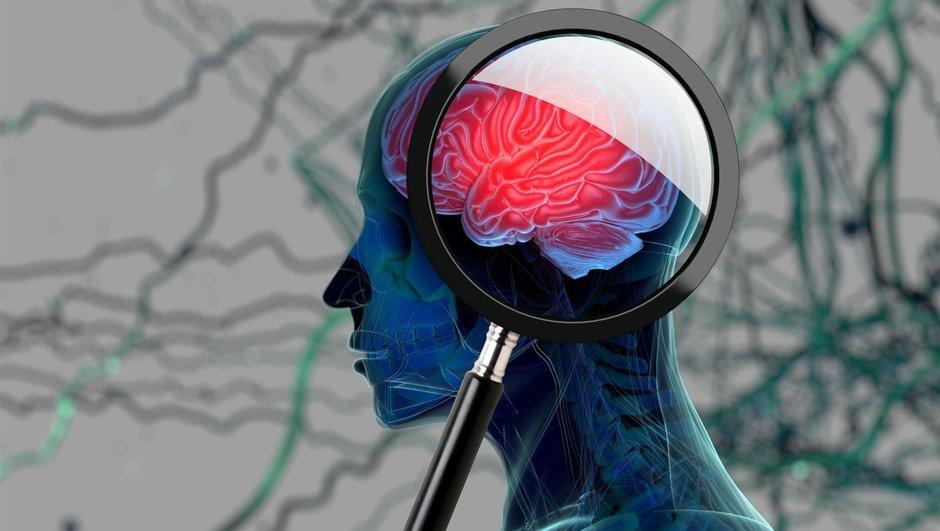 Alzheimer'a karşı yaşam tarzı silahı: 15 öneri