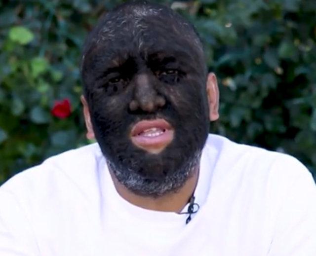 Kurt adam lakaplı Larry Gomez'in vücudunun yüzde 98'i kıllarla kaplı!