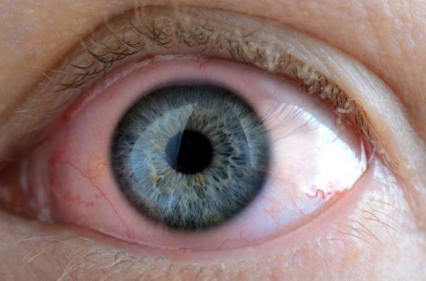 Göz iltihabı