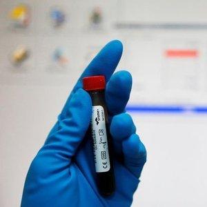 ZORUNLU HIV TESTİ TARTIŞMASI
