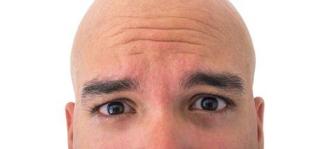 Saç ektirirken nelere dikkat edilmeli?