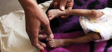 Dünya Sağlık Örgütü'nden Yemen'e 200 tonluk 'hayat kurtarıcı' malzeme