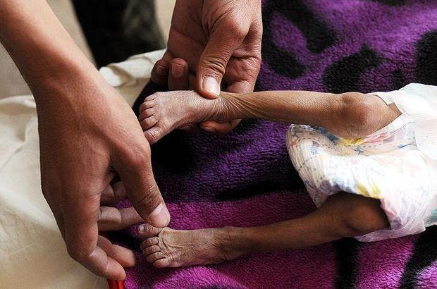 Yemen'e 200 tonluk 'hayat kurtarıcı' malzeme