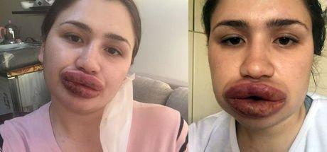 Medikal estetik hekimi Koldaş: Adana olayında mağdur olan camia biz olduk