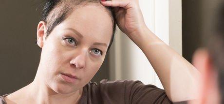 Kuaför olan trikotilomani hastası Kelsie Hanna saçlarını yolmadan bir gün bile geçiremiyor!
