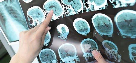 Multipl Skleroz (MS) hastalığı ile baş etmenin yolları!