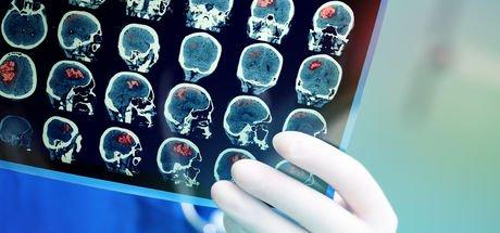 Hindistan'da Santal Pal isimli hastanın beyninden 2 kilograma yakın tümör alındı