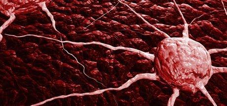 İleri evre meme kanserine karşı yeni silah! Sağlık Haberleri