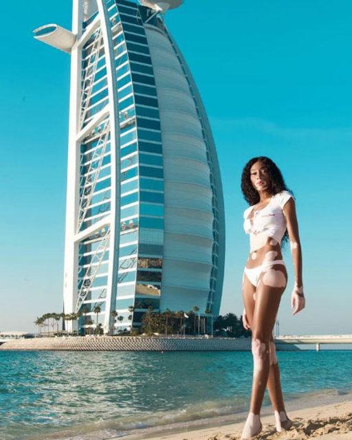 Winnie Harlow, Dubai'de - Magazin haberleri