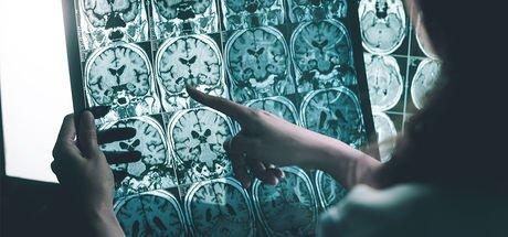 Bilim insanları açıkladı! Alzheimer'ın en büyük düşmanı uyku!