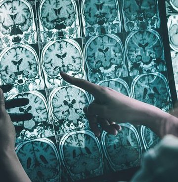 Bilim insanları Alzheimer'ın en büyük düşmanını açıkladı!