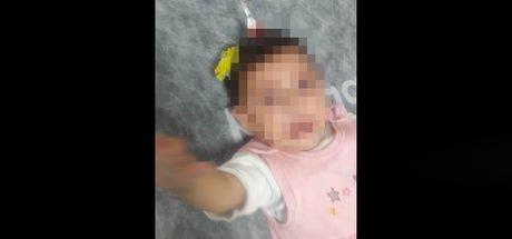 Bebeğin kafasındakini gören doktorlar şoke oldu