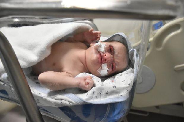 Dört günlük bebeğe kulak derisinden göz kapağı!