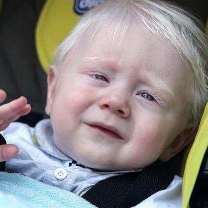 Dünya Albinzm Farkındalık Günü