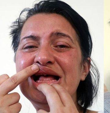Beyaz diş uğruna 32 dişi çekilmişti, yetmedi! Şimdi ise...