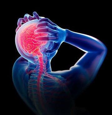 """Op. Dr. Kerem Bıkmaz, """"Anevrizma yani halk dilinde bilinen adıyla beyin kanaması, ani ve şiddetli baş ağrısı, bulantı, fışkırır tarzda kusma, konuşmada güçlük, baş dönmesi gibi bazı belirtilerle kendini gösteren ölüme veya telafisi mümkün olmayan hasarlara yol açabilen çok ciddi bir sağlık problemidir"""" dedi"""
