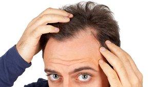 Sağlık Bakanlığı'ndan saç ekimi uyarısı