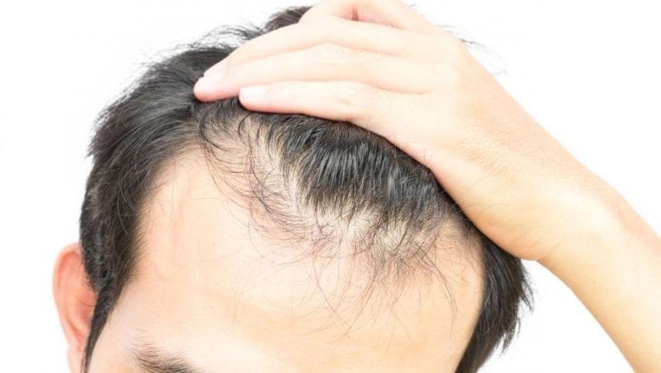 Sağlık Bakanlığı'ndan saç ekimi uyarısı!