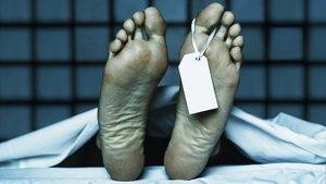 Hastaların ölüm ihtimalini hesaplıyor!