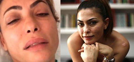 Tayland'da dang humması kapan Leyla Bilginel İstanbul'a getirildi! - (Son Dakika)