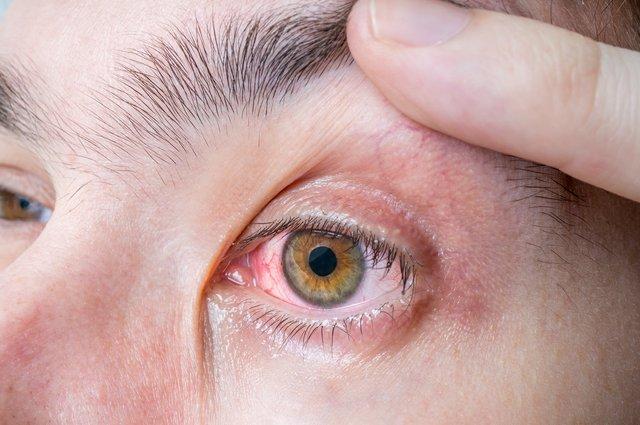 Gözün önünde uçuşan sinekler ne anlama geliyor?