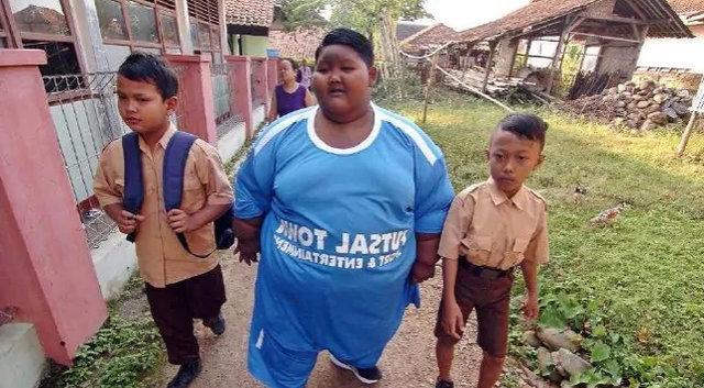 Arya Premana dünyanın en şişman çocuğuydu! Bakın şimdi kaç kilo...