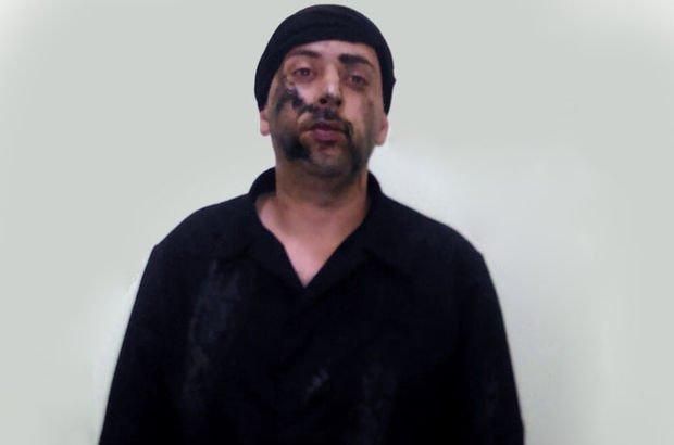 Azerbaycan ordusu bir Ermeni askerini esir aldı