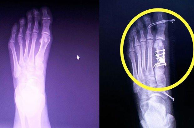 Röntgeni gördü, şaşkına döndü!