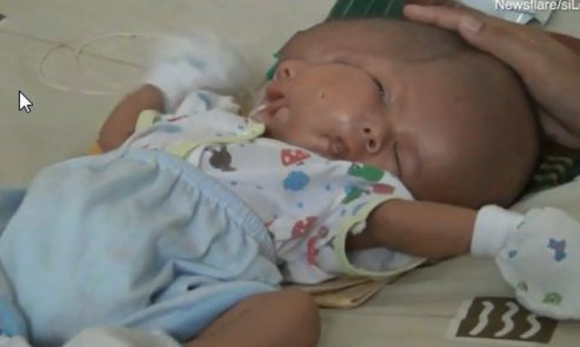 Endonezya'da iki yüzlü bebek doğdu!