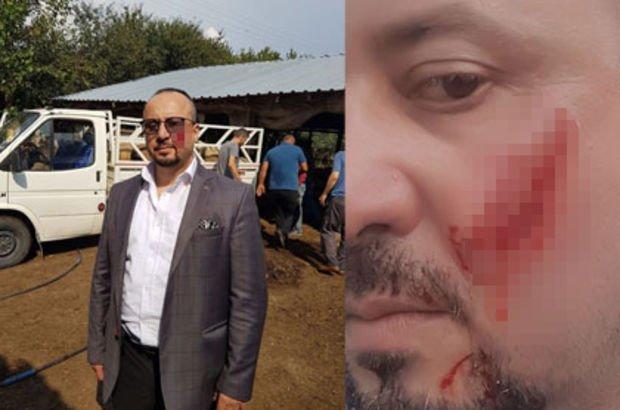 Borçlu icra takibi yapan avukatın yanağını ısırarak kopardı