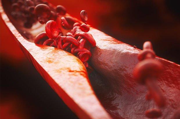 Türk bilim insanları, kolesterolü düşürmek için bir ilke imza attı!
