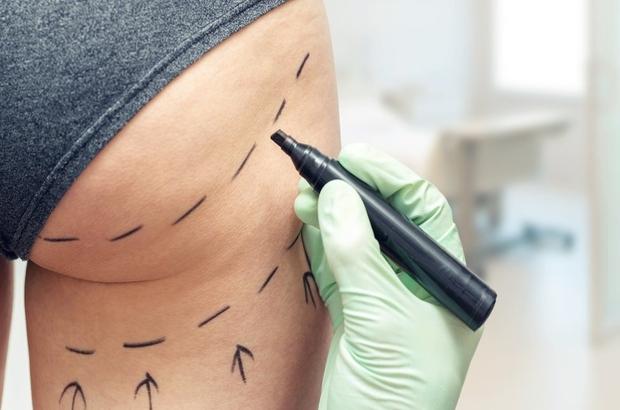 Brezilya tipi kalça kaldırma ameliyatı riske değer mi?
